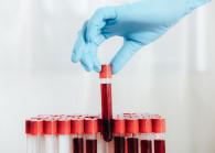 bloodtest125221030_s_0_2.jpg